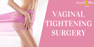 vaginal tightening laser